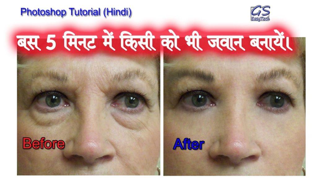 remove eye bags